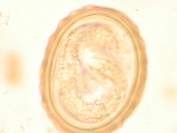 The larva of Ascaris lumbricoides, the infection caused by roundworms