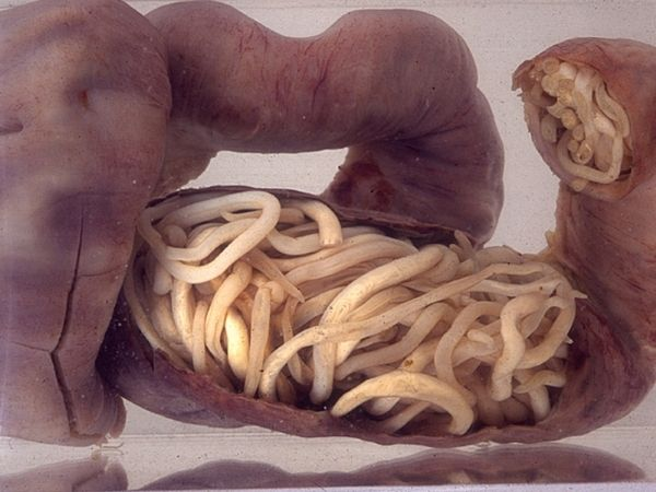 Piece of intestine, blocked by worms, surgically removed from a 3 year old in South Africa